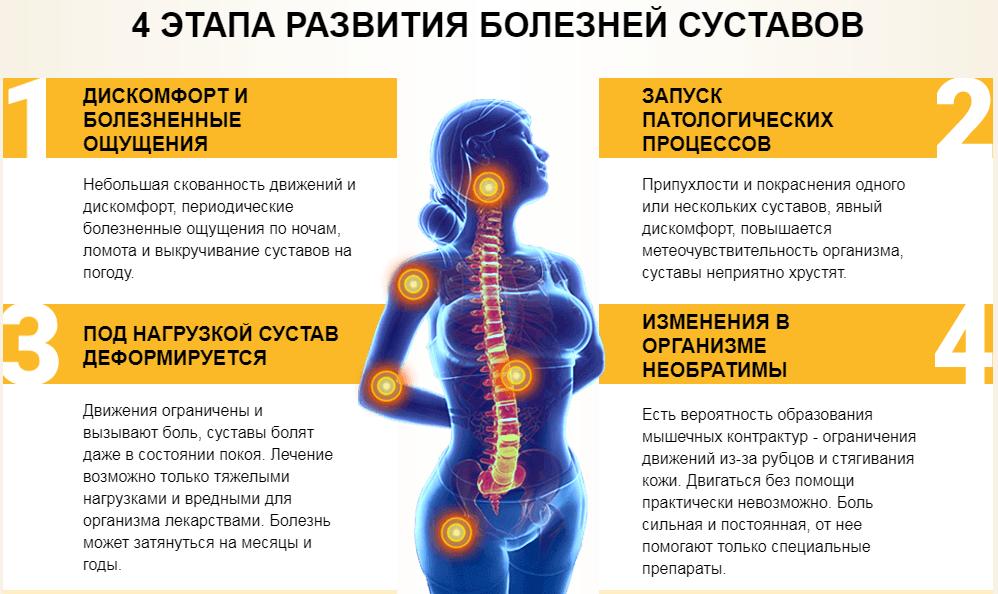 """alt=""""Причины развития болезней суставов и их профилактика"""""""